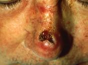 Pathology: Patient: Squamous Cell Carcinoma. Tends to arise from pre-malignant lesions, actinic keratoses; surface is usually scaley and often ulcerates (as shown here).