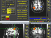 The effects of Cognitive Remediation Therapy can be visibly assessed via fMRI.