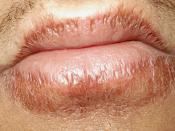English: Chapped lips. My own chapped lips resulted from a prolonged exposure to wind during a motorcycle pillion ride.
