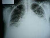English: Medical X-rays Congestive heart failure