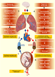 Pathophysiology of the amniotic fluid embolism (the arrows indicate the oxygen content of the blood: red – rich in oxygen, blue – poor in oxygen)