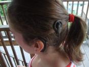 Left ear cochlear implant as worn by user
