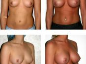 English: Bilateral Breast Augementation, Silicone, high profile, 500cc implants. Dr. Otto J. Placik Board Certified Plastic Surgeon Chicago, IL. For use of image please reference-Wikipedia terms of use