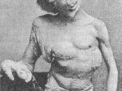 English: A photograph of Joseph Merrick (1862–1890), sometimes called the