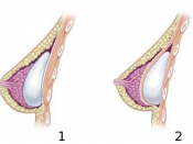 Breast augmentation: cross-sectional schemes of a subglandular breast prosthesis implantation (1) and of a submuscular breast prosthesis implantation (2).