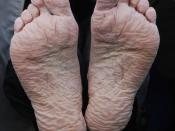 English: A mild case of trench foot