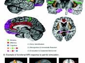 Regions of the cerebral cortex associated with pain.