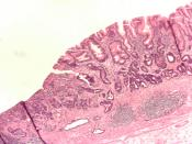 Adenocarcinoma of the stomach and intestinal metaplasia. H&E stain.