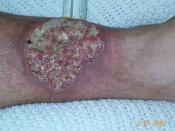 Pyoderma gangrenosum, A medical condition which the body attacks itself in painful ulcers seen in Crohn's patients. This is a picture of the lower half of the left leg.