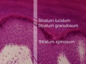 English: Layers of the epidermis