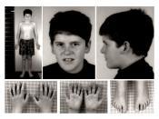 English: t(4;15) carrier, Prader-Willi syndrome phenotype, at 15 years of age . Note absence of typical PWS facial features and presence of mild truncal obesity. Polski: 15-letni chłopiec z zespołem Pradera-Williego (translokacja t(4;15)) o słabo wyrażony