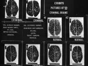 A 1920s display comparing brain types to criminality.