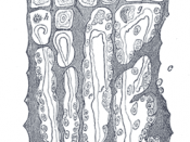 "Drawing of part of a longitudinal section of the developing femur of a rabbit. a. Flattened cartilage cells. b. Enlarged cartilage cells. c, d. Newly formed bone. e. Osteoblasts. f. Giant cells or osteoclasts. g, h. Shrunken cartilage cells. (From ""Atlas"