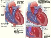 English: Figure A shows the structure and blood flow in the interior of a normal heart. Figure B shows two common locations for a ventricular septal defect. The defect allows oxygen-rich blood from the left ventricle to mix with oxygen-poor blood in the r