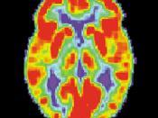 English: PET scan of a normal human brain