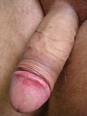 English: Balanitis on an intact penis