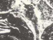 English: Systolic time data acquisition MRI image