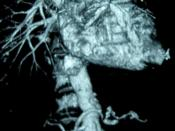 English: This is CT imaging an abdominal aortic aneurysm (AAA), 40,8 mm. Српски / Srpski: Ово је CT ангиограм анеуризме трбушне аорте (ААА) promera 40,8 mm.