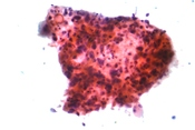 Micrograph of squamous carcinoma, a type of non-small-cell carcinoma. FNA specimen. Pap stain.