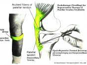 Needling Therapy for Patellar Tendonitis