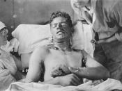 A Canadian soldier with mustard gas burns, ca. 1917-1918.