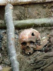 English: Skull of a victim of the July 1995 Srebrenica massacre. Exhumed mass grave outside the village of Potocari, Bosnia and Herzegovina. July 2007.