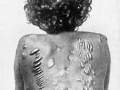 English: Woman of the Larrakia tribe. The scars on her back are a sign of widowhood. All the young women been married by the old men in a harem, and the widows been married by the young men. The greater sorrow over the old man, the bigger scars and the mo