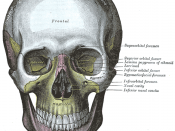 The skull from the front. The sphenoid is labeled with yellow to the left of the picture, both in the orbit and behind the zygomatic process
