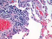 Microscopic view of a histologic specimen of human lung tissue stained with hematoxylin and eosin.