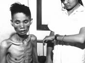 The effects of just one month spent in a Viet Cong prison camp show on 23-year-old Le Van Than, who had defected from the Communist forces and joined the Government side, was recaptured by the Viet Cong and deliberately starved.