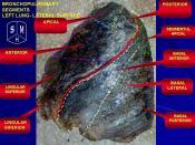 English: Human left lung