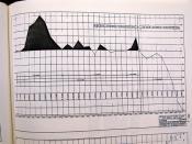 Seattle Transit System 32 Year Net Loss & Profit History