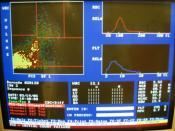 English: Complete blood count performed by an Automated analyser. Differentials missing. Español: Resultados de un hemograma realizado automaticamente. La fórmula blanca está ausente.