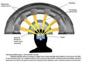 English: Concept of Gamma Knife Stereotactic Radiosurgery