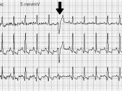 Premature ventricular contraction in an ECG (arrows). Suomi: EKG:ssa kammioperäisiä lisälyöntejä (nuolet). Italiano: Un elettrocardiogramma con extrasistole. Norsk (bokmål): VES (pil).